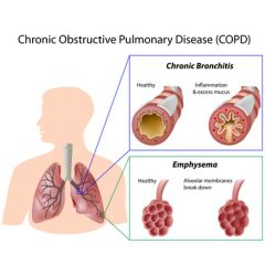 RESP010 - Intervention and Strategies for the COPD Population